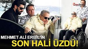 Mehmet Ali Erbil'in Son Hali Üzdü!