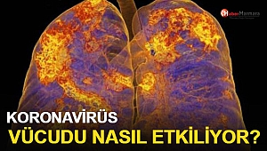 Koronavirüs Vücudu Nasıl Etkiliyor?