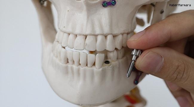 Dünyanın en küçük  implantı  üretildi