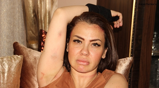 Kazadan şans eseri yaralı kurtulan Şarkıcı Lara o anları anlattı
