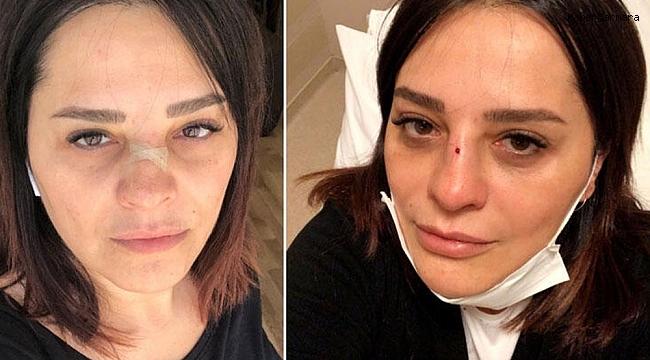 Ünlü şarkıcı Reyhan Karaca'nın burnu kırıldı