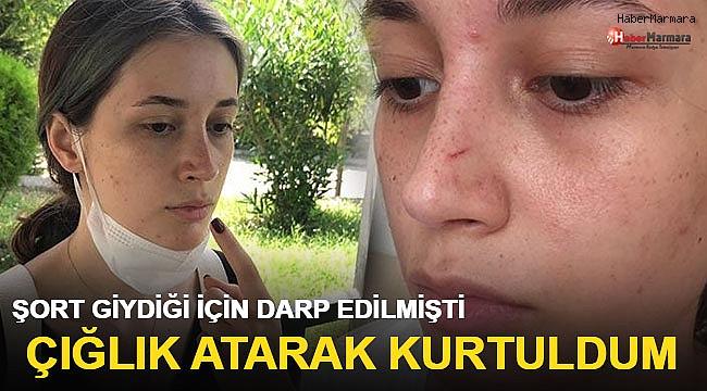 Şort giydiği için darp edildiğini iddia eden ODTÜ'lü geç kız: Çığlık atarak kurtuldum