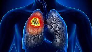 Akciğer kanserinde erken tanı önemli
