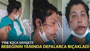 Kan Donduran Vahşet! Bebeğinin Yanında Defalarca Bıçakladı